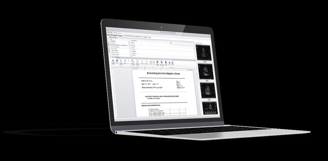 laptop exibindo gemed cárdio
